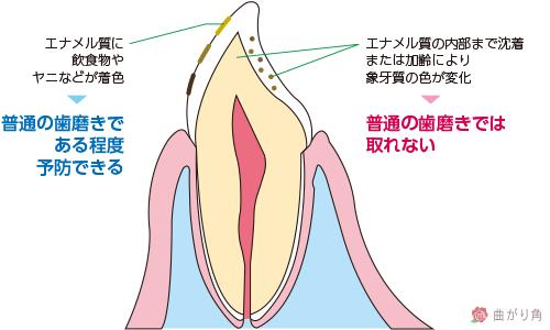 歯の着色メカニズム