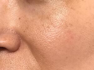 頬まわり 2週間