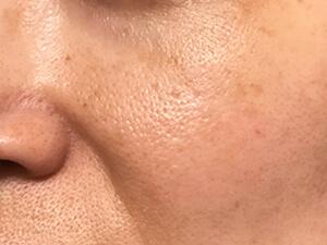 頬まわり 3週間