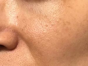頬まわり 4週間