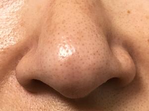 鼻まわり 1週間