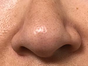 鼻まわり 3週間