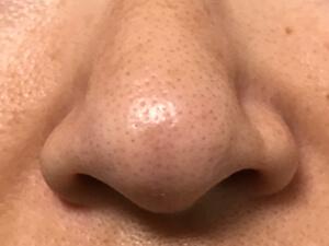鼻まわり 4週間