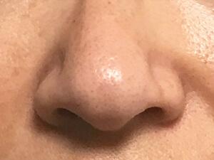 鼻まわり Before