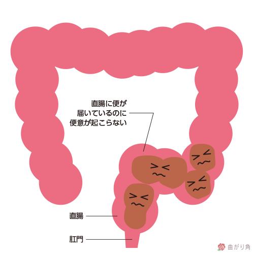 直腸性便秘